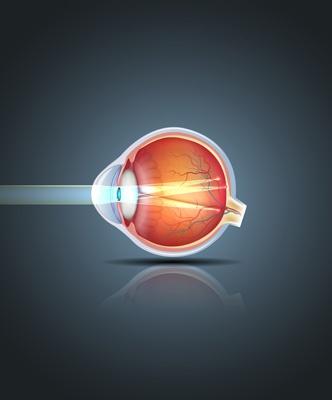 astigmatie consultation et soin
