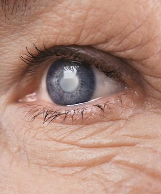 Ophtavalmy examen cataracte
