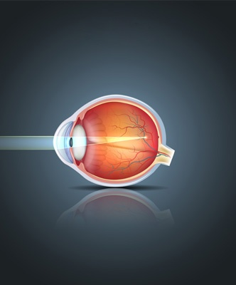Myopie mauvaise vue de loin